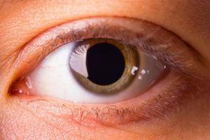 transe pupille